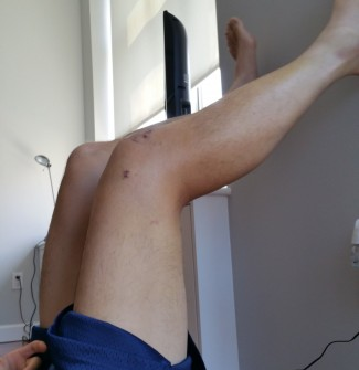 Knee Flexion on Day 11 - Around 70 degrees flexion.